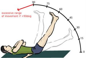 straight leg raise test excessive