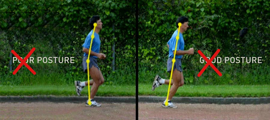 running-injuries-caused-by-poor-running-form-overposturised