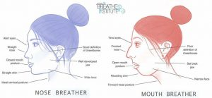 Nose Breather Vs Mouth Breather